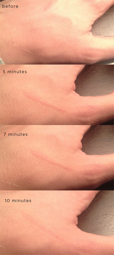 A Surprising Link Between Dermatographia and Antibiotics
