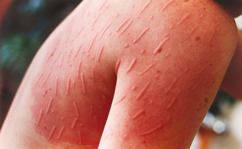 Hashimoto Disease Natural Treatment